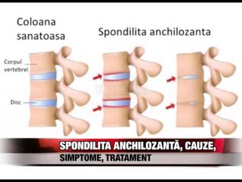 Spondilita anchilozantă - ce este, cauze, simptome, diagnostic, tratament