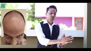 HAIR TRANSPLANT IN INDIA (2018) : A MUST WATCH VIDEO FOR ALL WHO ARE SUFFERING FROM BALDESS