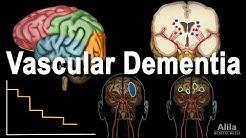 Vascular Dementia Pathology, Animation