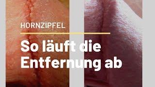 Hornzipfeln die entfernung von Hornzipfel: Diese