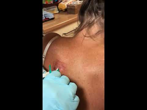Infected Sebaceous Cyst 25 Days From Lancing Packing Cavity - Part 12