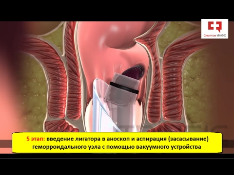 Лечение геморроя кольцами без операции с помощью вакуумного лигатора
