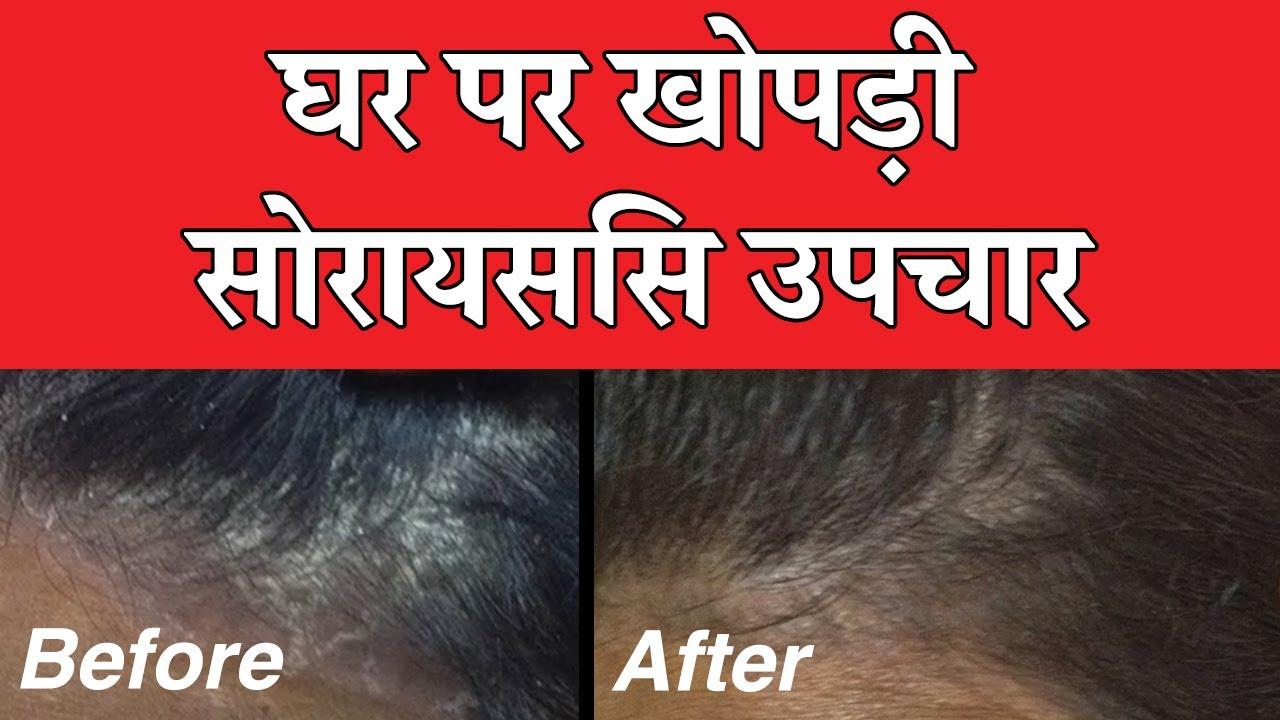 scalp psoriasis treatment in ayurveda in hindi)
