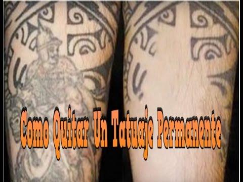 Como Quitar Un Tatuaje Permanente Como Quitar Tatuajes Sin Laser