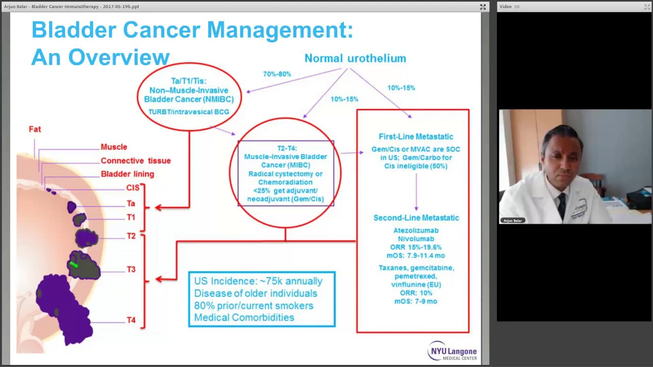 Advances in Bladder Cancer Immunotherapy, with Dr  Arjun Balar