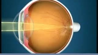 34. cikk a látásról