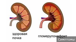 Гломерулонефрит. Как лечить гломерулонефрит.