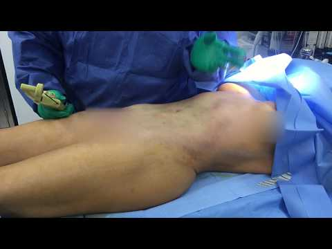Liposuction Revision Abdomen with BodyTite with Dr. Kenneth Benjamin Hughes, MD