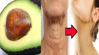 Avocadokern gegen Falten – ein einfaches und effektives Hausmittel