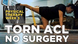 Torn ACL NO SURGERY At Home Workouts/Physical Therapy- Week 3