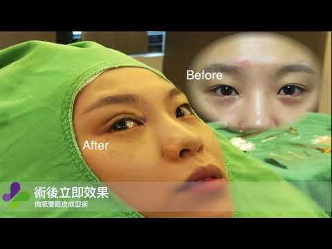 風華整形外科診所-微感雙眼皮成型術 - YouTube