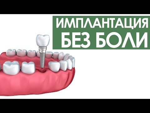 Имплантация зубов без боли | ПрезиДЕНТ Видное