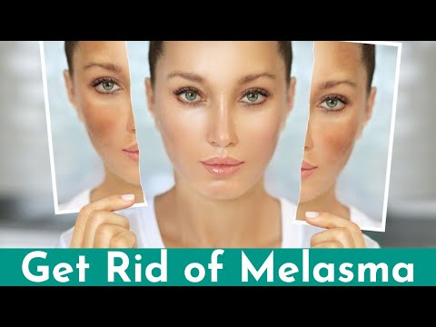 How to Cure Melasma - Causes & Treatment by Dr. Sanjay Mittal