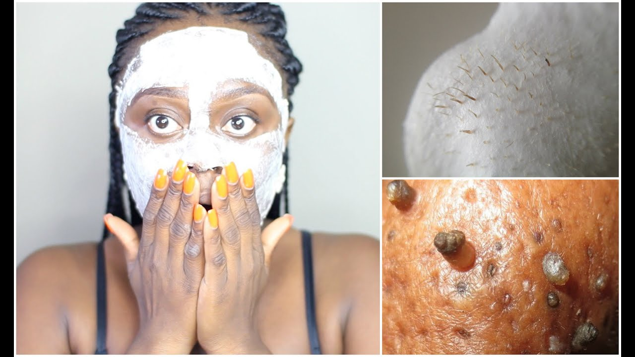 blackhead removal peel off mask using egg get a flawless looking skin it actually works youtube. Black Bedroom Furniture Sets. Home Design Ideas