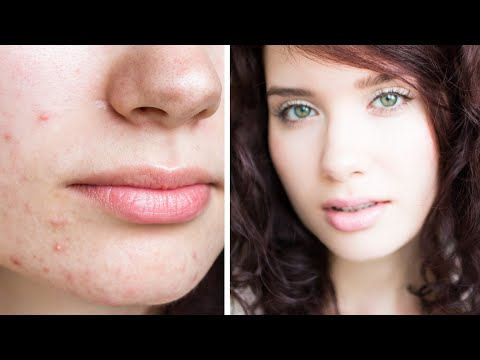 How To Cover Acne & Scars   My Full Coverage Mineral Foundation Routine - NON-COMEDOGENIC, NATURAL
