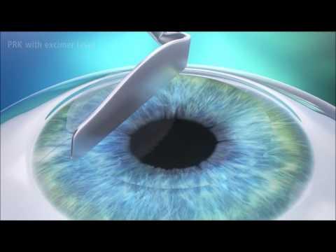 Download Photorefractive Keratectomy PRK
