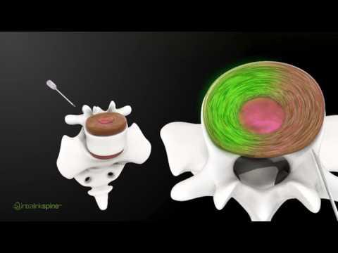 Intralink-Spine's Réjuve™ Treatment: Turning Skeptics Into Believers
