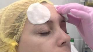 Меди Лайт Ботокс верхней части лица лоб