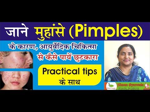 जाने मुंहासे ( Pimples ) के कारण , आयुर्वेदिक चिकित्सा practical tips के साथ
