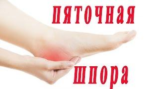 ★Методы лечения пяточной шпоры. Проверенные советы.