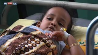 ارتفاع عدد وفيات الكوليرا باليمن