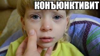 видео Красные глаза у ребенка