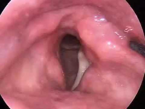 цветотерапия лечение голосовых связок