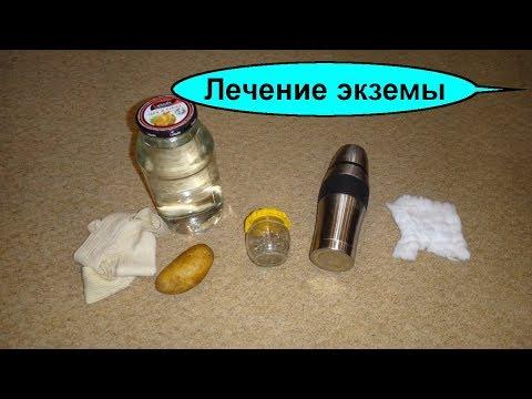 Лечение экземы картошкой. Корень одуванчика при экземе настой на талой воде