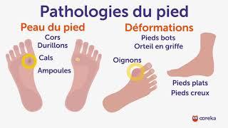 Soigner les pathologies du pied - Ooreka.fr