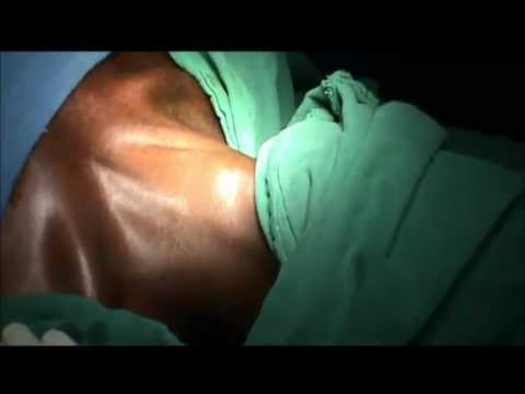 emergency tracheostomy youtube