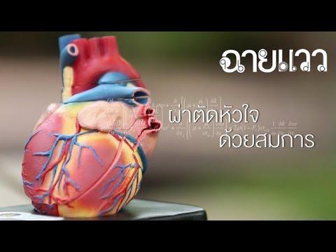 ฉายแวว [by Mahidol] ผ่าตัดหัวใจด้วยสมการ