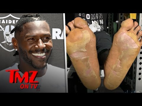 nfl-player's-disgusting-foot-injury-caused-by-'cryogenic-chamber-mishap'-|-tmz-tv