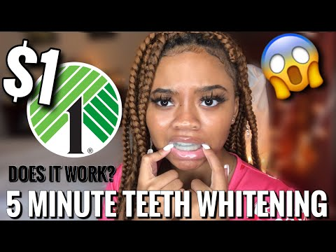 5 MINUTE TEETH WHITENING FROM DOLLAR TREE | DOES IT WORK?