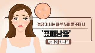 [힐팁TV] 점점 커지는 피부 노폐물 주머니 '표피낭종…
