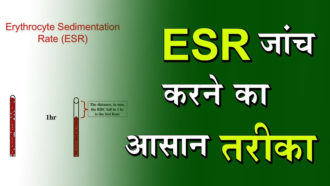 ESR Test: Overview, Risks, and Results - By DPMI