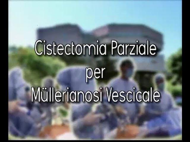 Laparoscopic surgery - Cistectomia parziale per Müllerianosi  vescicale
