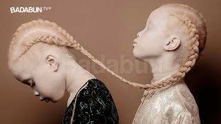 El escalofriante caso de las gemelas albinas. La historia más aterradora del 2017