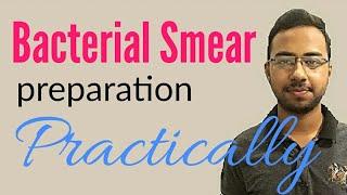 Slide perpetration or smear making