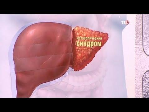 Жировой гепатоз. Доктор И...