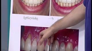 ექიმები - აცრა, კბილების მოვლა - 26.04.2015