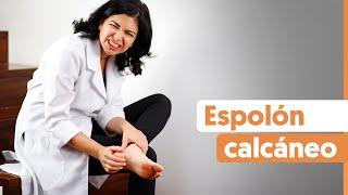 Espolón calcáneo: Qué hacer para aliviar el dolor