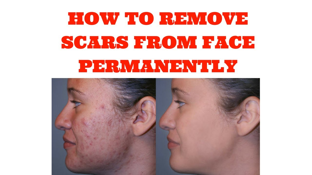 how to remove a scar on your face