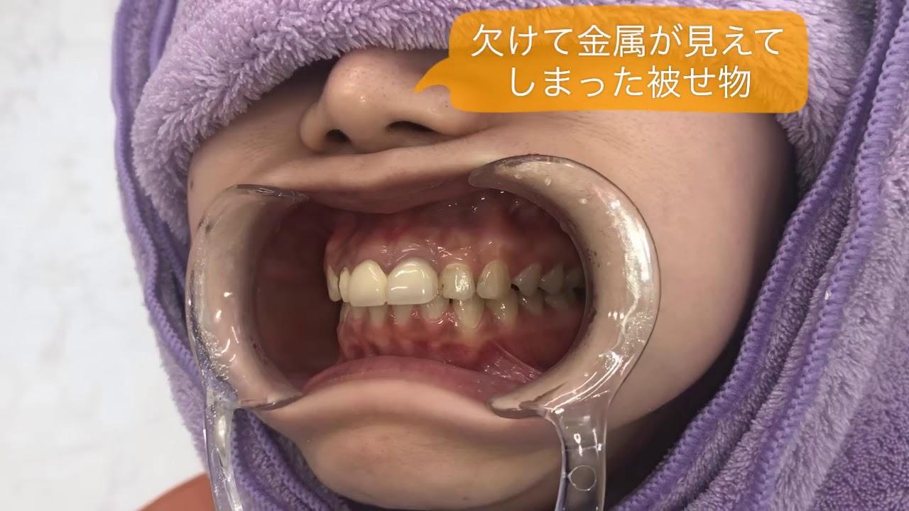 三ノ宮 虫歯治療