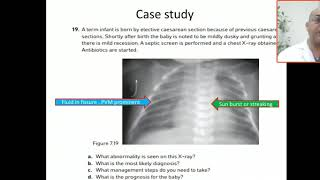 NeoPeds Respiratory Care Class lecture Page 1-9..