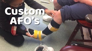 First steps in her AFO's - custom AFO fitting