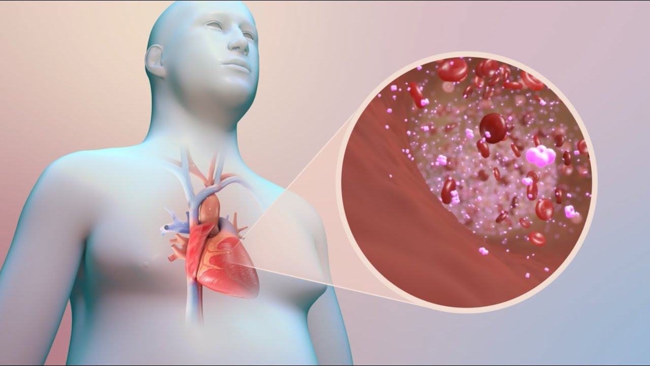 International Diabetes Federation - Cardiovascular disease