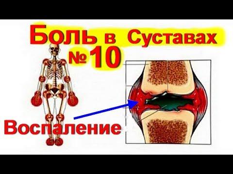 Поясничный остеохондроз, ишиас, люмбаго, грыжа. Симптомы и