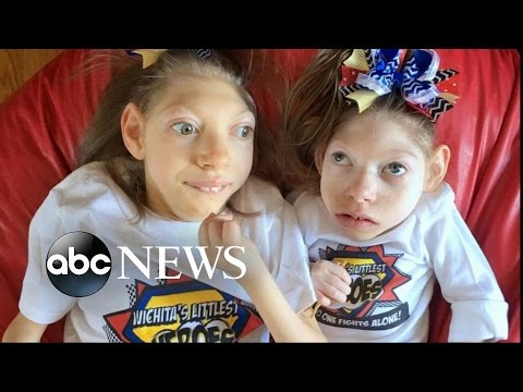 Kansas Parents of 2 Girls With Microcephaly Share Joys, Struggles of Family Life