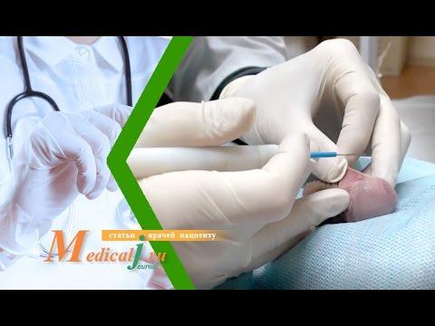Операция пластика уздечки крайней плоти радионожом