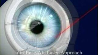 intralase bladeless lasik